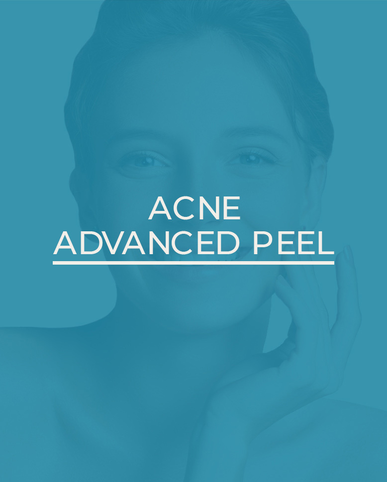 ACNE-PEEL-homepage-display2